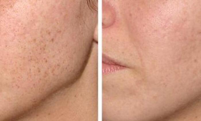 3 טיפולי פנים בקלינקה לטיפולי אנטי אייג'ינג, רמת השרון