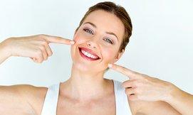 הלבנת שיניים בלייזר בקונפידנט