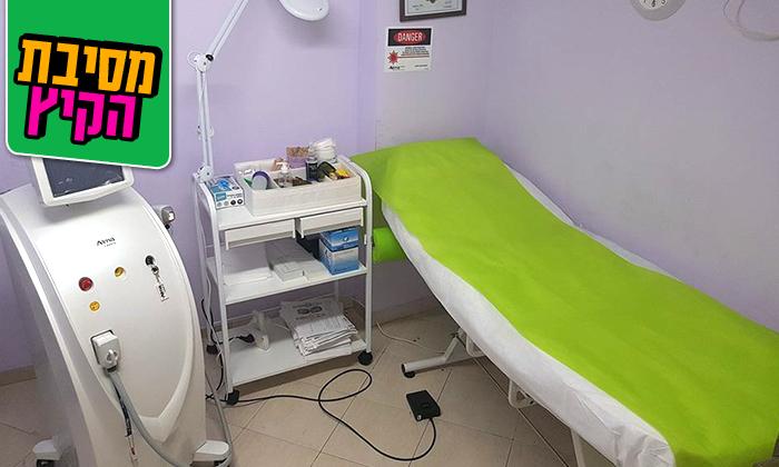 3 טיפולי הסרת שיער בשיטת SHR בסלון אלינה, ראשון לציון