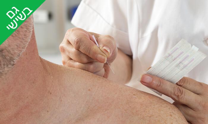 4 טיפול ברפואה משלימה - מיסטיקליניק, חיפה ועתלית