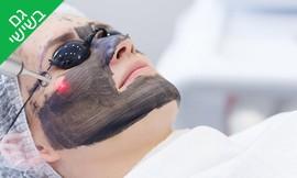 טיפול פנים - פילינג קרבון