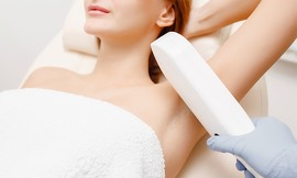 3 טיפולי הסרת שיער בשיטת IPL