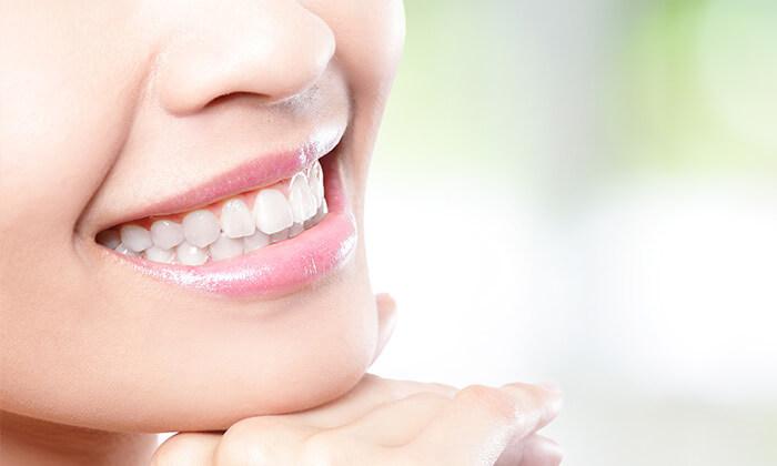 2 מרפאת השיניים שבזידנט בראש העין